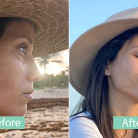 before and after lara 01 280x280 - REVIEWS
